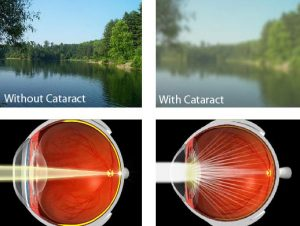 Cataract Surgery San Diego