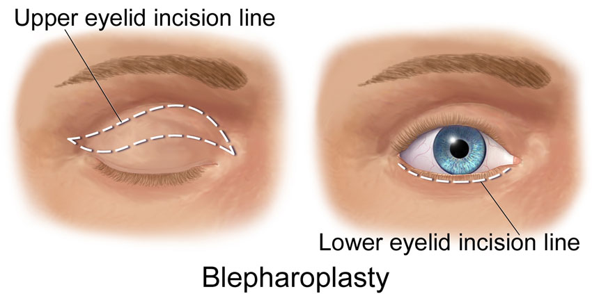 Eyelid surgery San Diego Blepharoplasty for medical and cosmetic
